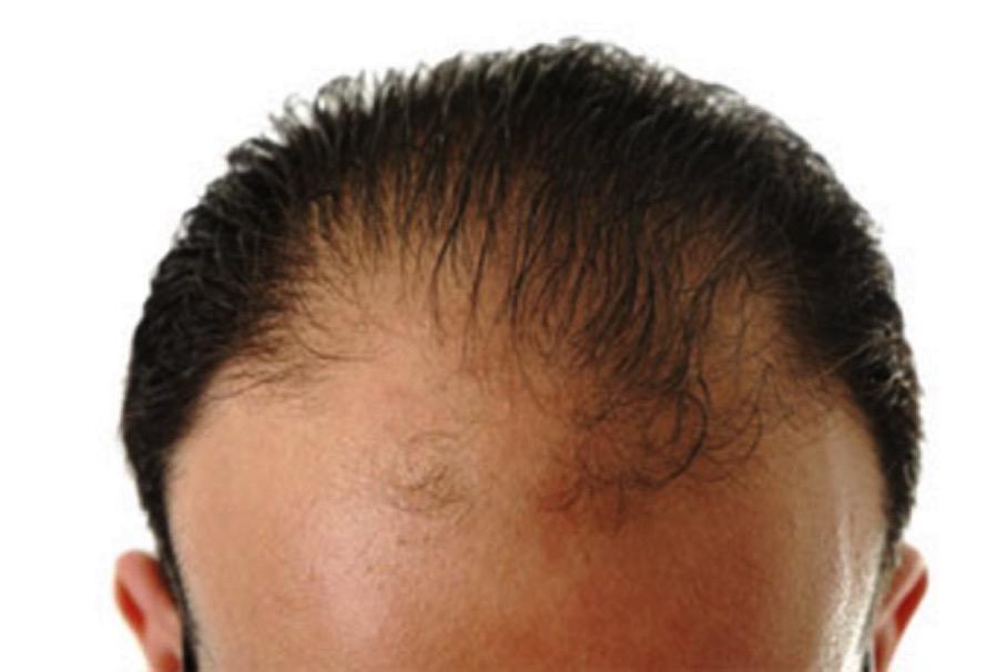 【抜け毛が多い人の原因】は食生活?外食が増えると抜け毛も増える。